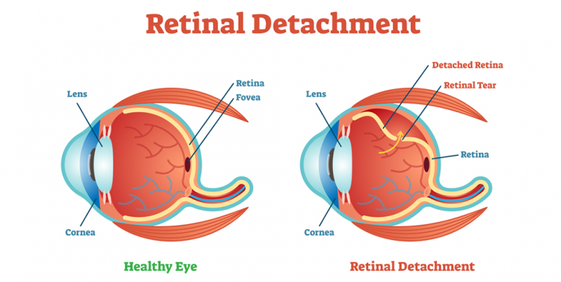 What are the Common Symptoms of a Detached Retina?