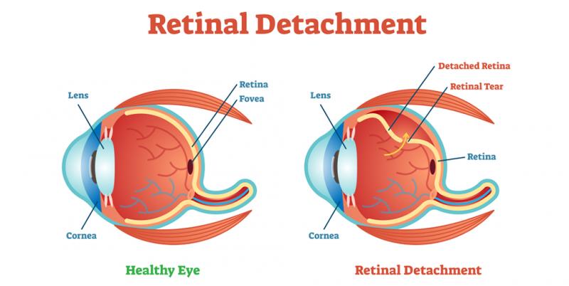 best eye specialist doctor in India