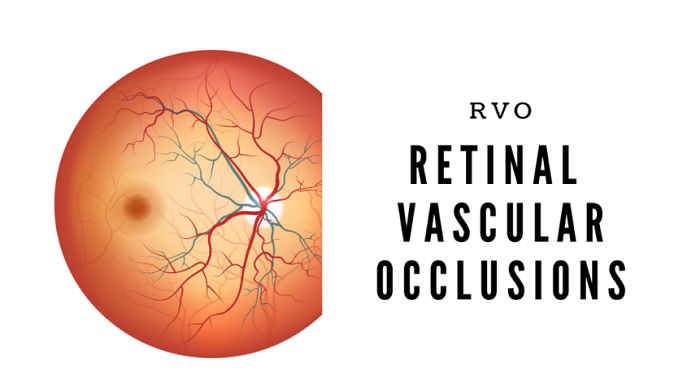 Retinal Vascular Occlusion – causes, symptoms and more
