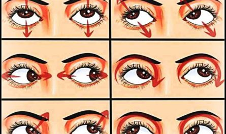 best eye clinic in Gurgaon
