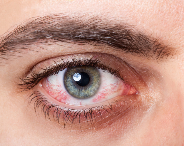 Glaucoma: types, causes and symptoms