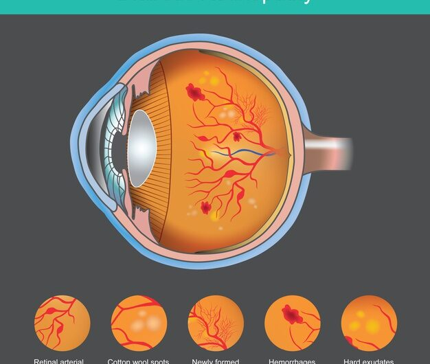 5 Reasons Why you Should be Aware of Diabetic Retinopathy