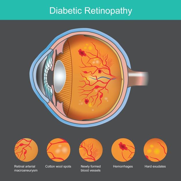 retina eye specialist