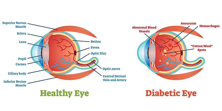 5 Ways Diabetes Can Affect Your Eyes & Vision