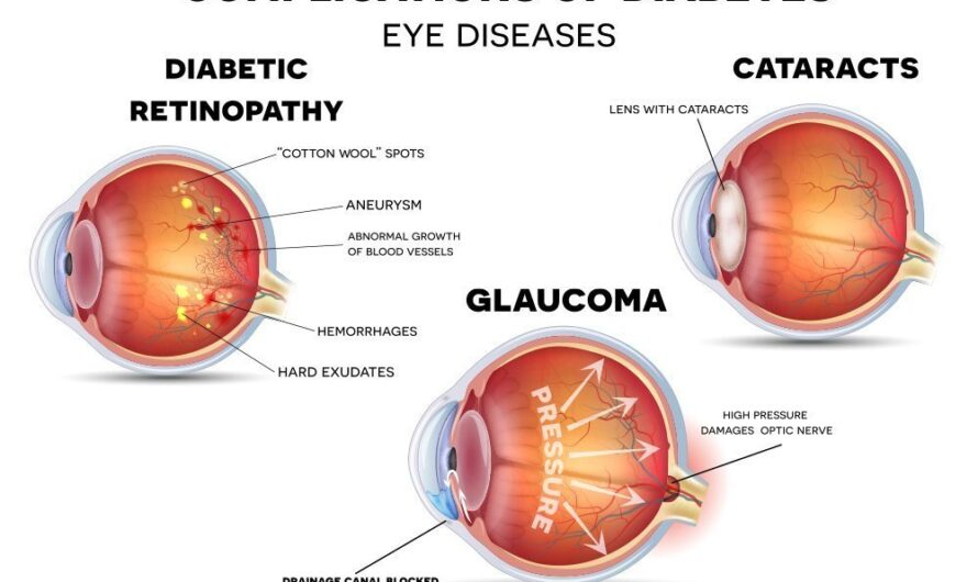 Glaucoma and Diabetes: Is There a Connection?