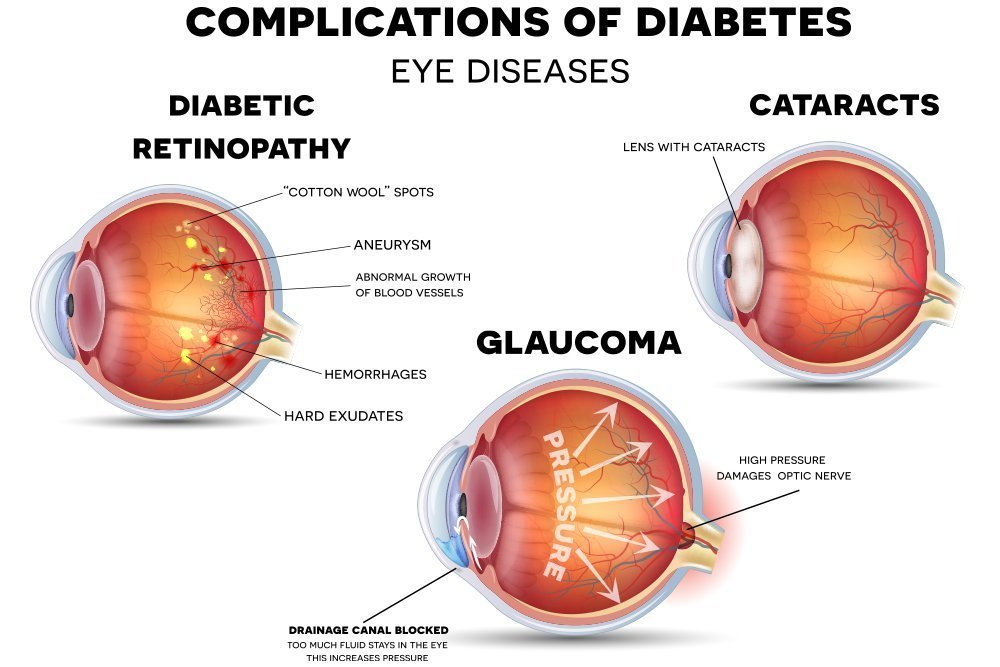 cataract specialists in gurgaon
