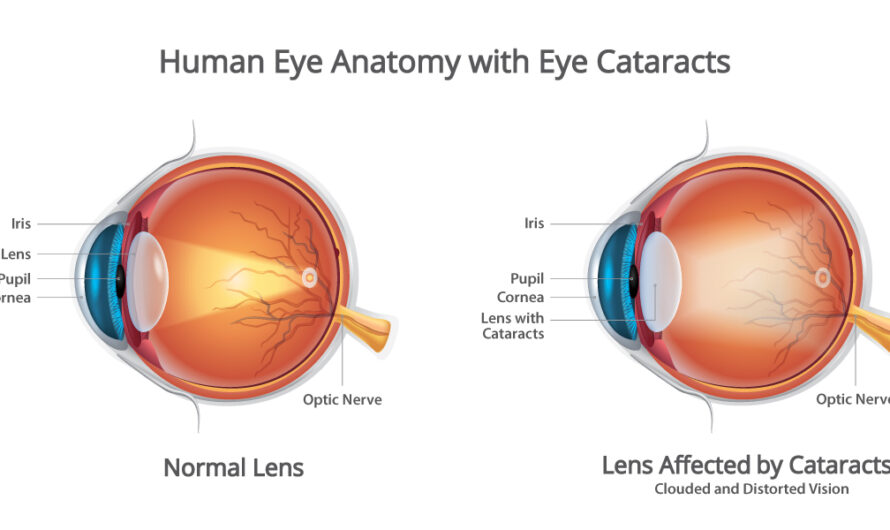 How to avoid occurrence of Cataract in Eyes?